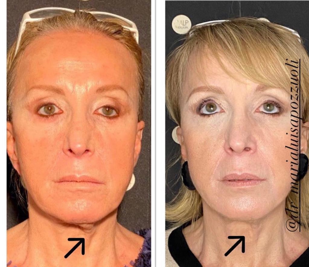 prima e dopo ultherapy