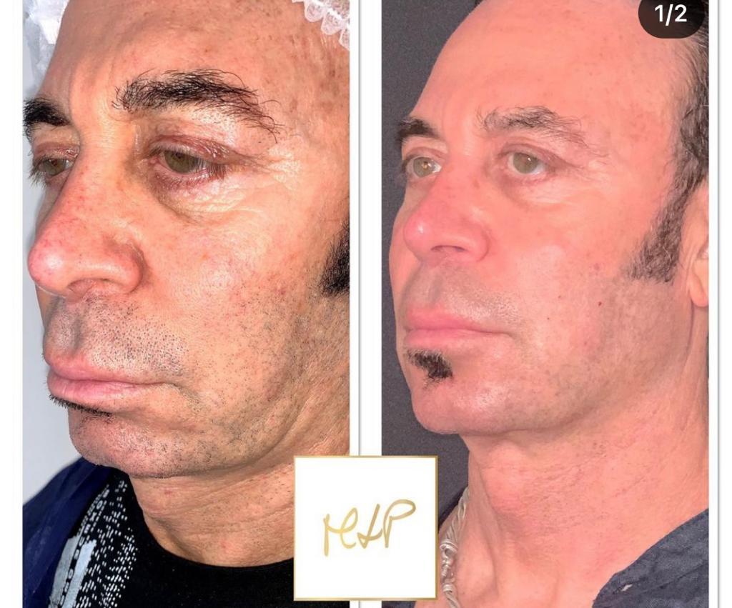 ultherapy prima e dopo
