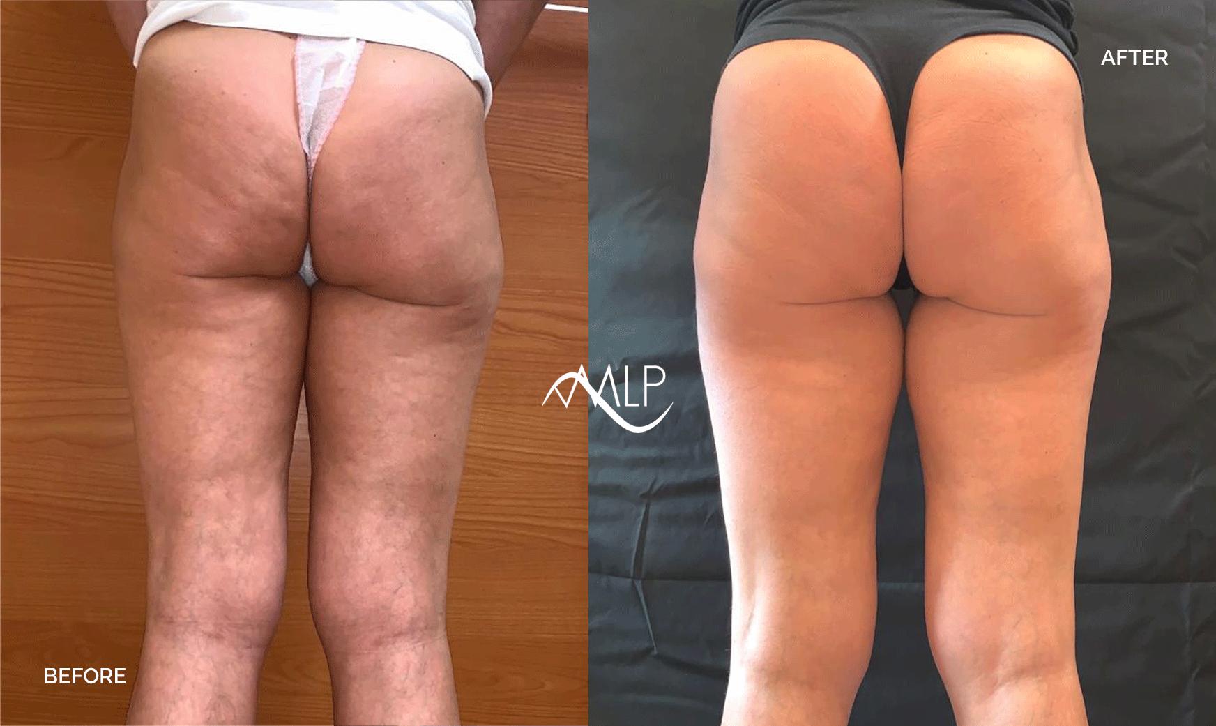 prima e dopo venus legacy corpo dottoressa pozzuoli torino