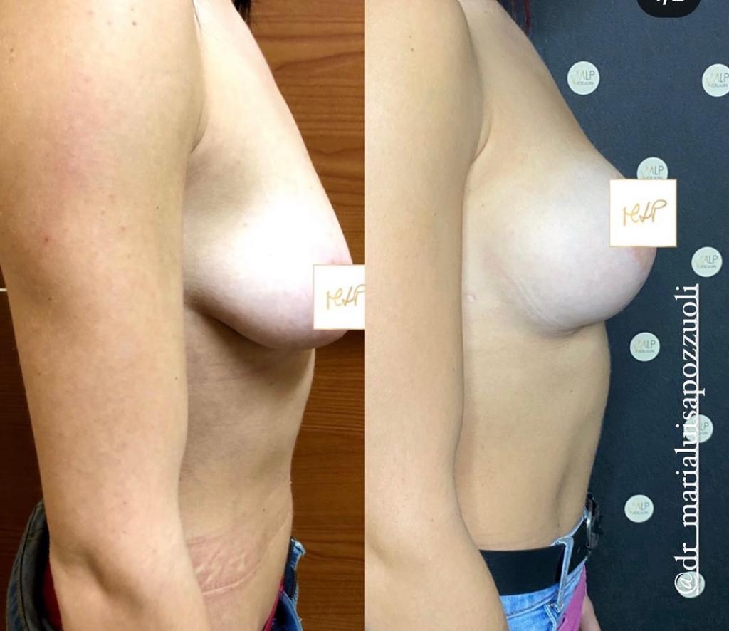mastopessi prima e dopo 1