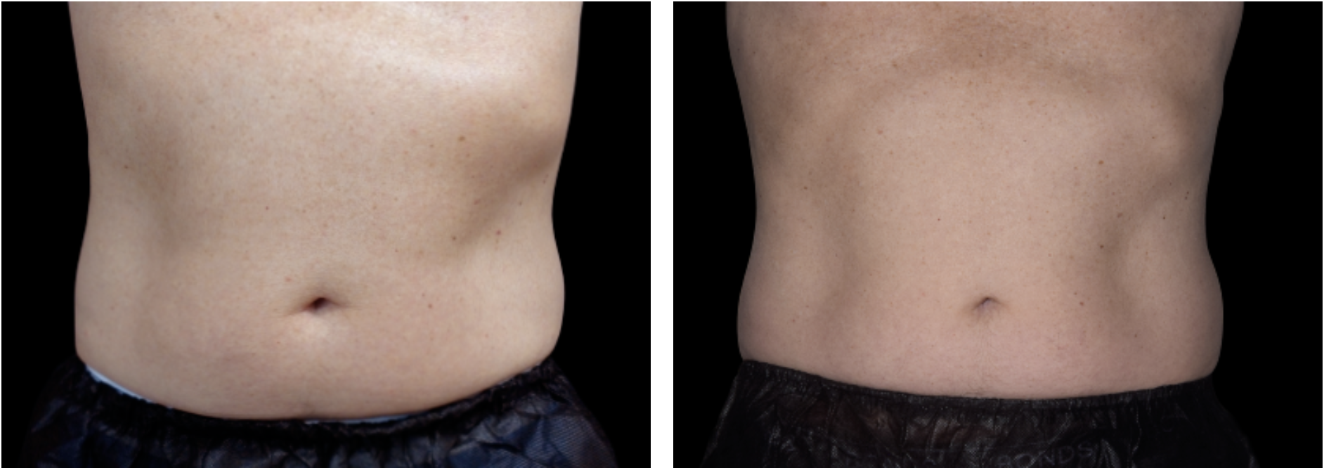 prima e dopo emsculpt dottoressa pozzuoli torino