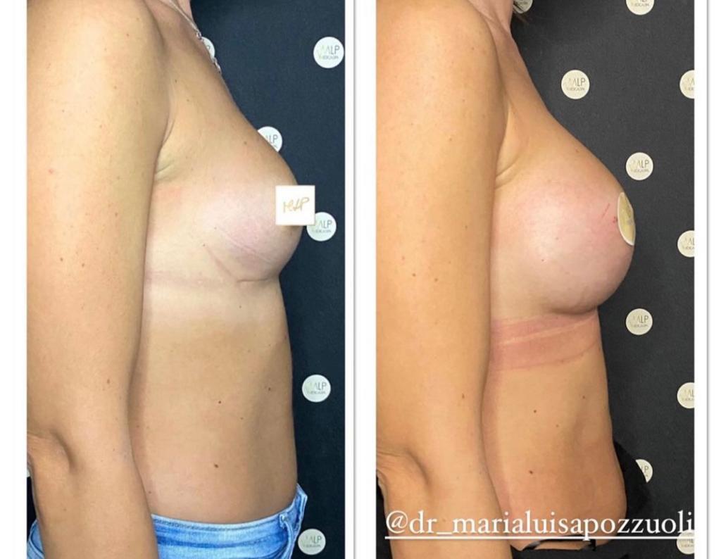 prima e dopo mastoplastica additiva dottoressa pozzuoli